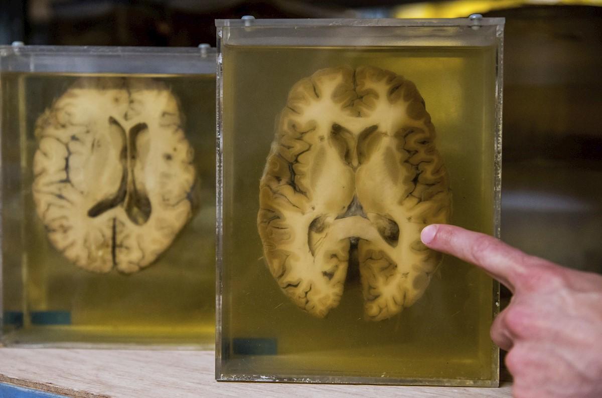 Descubren una variante genética que puede ayudar a proteger ante el alzhéimer