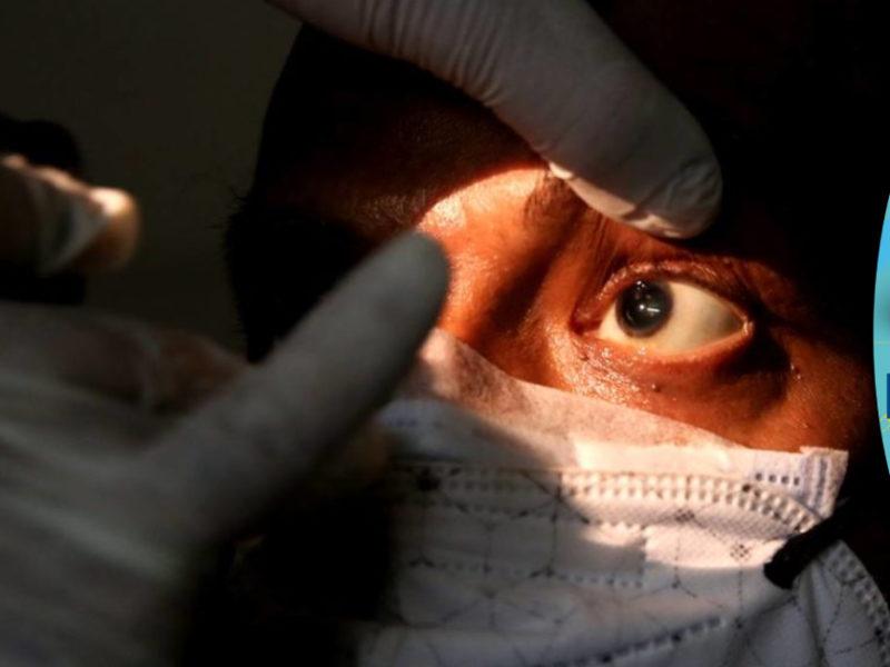 Médico pide estar atentos con pacientes que utilizan medicamentos que bajan las defensas ante el hongo negro